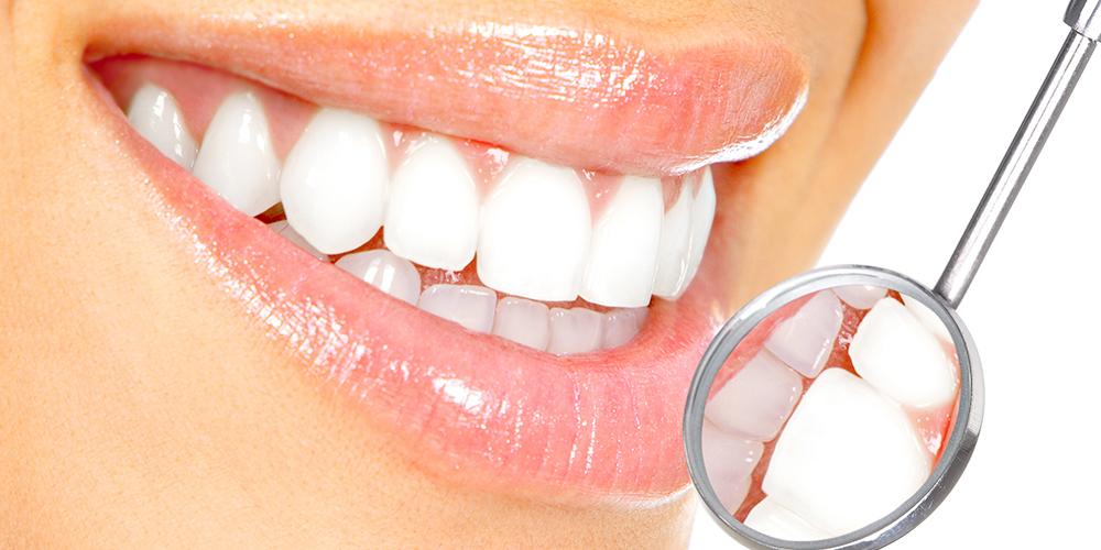 clean-dental