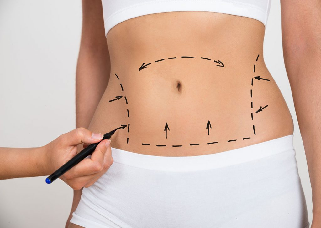 Abdominoplasty-cosmedic-surgery