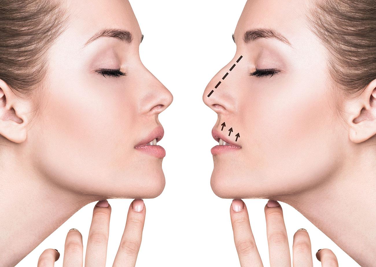 Rhinoplasty - Bali plastic surgery