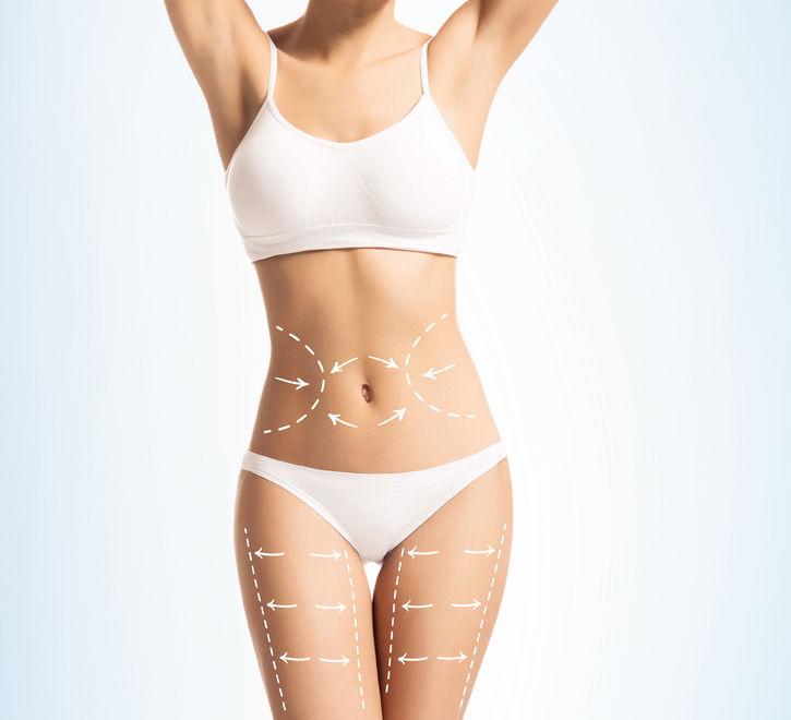 Abdominoplasti