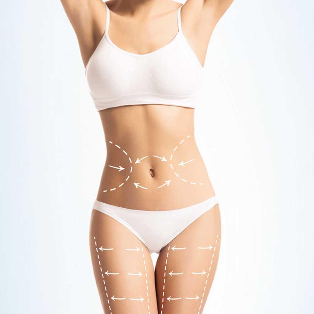 Abdominoplasti - Bali plastic surgery
