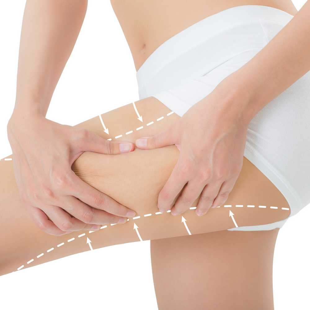 Liposuction - Bali plastic surgery
