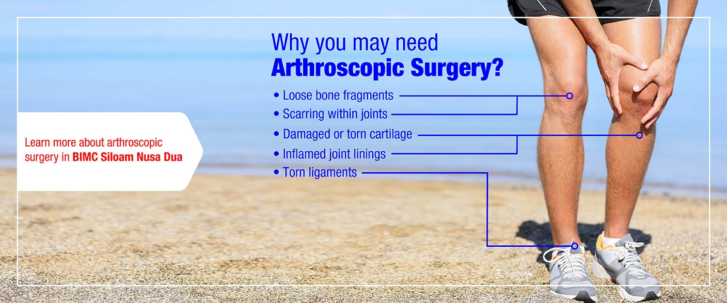 Bimcsiloam Header Slideshow Website Arthroscopic