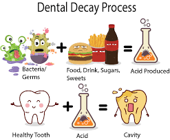 Dental Decay Proses