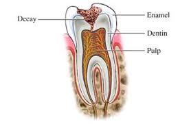 Gigi Karies - Apa itu karies gigi