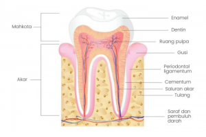 Gigi Sehat - Apa itu karies gigi
